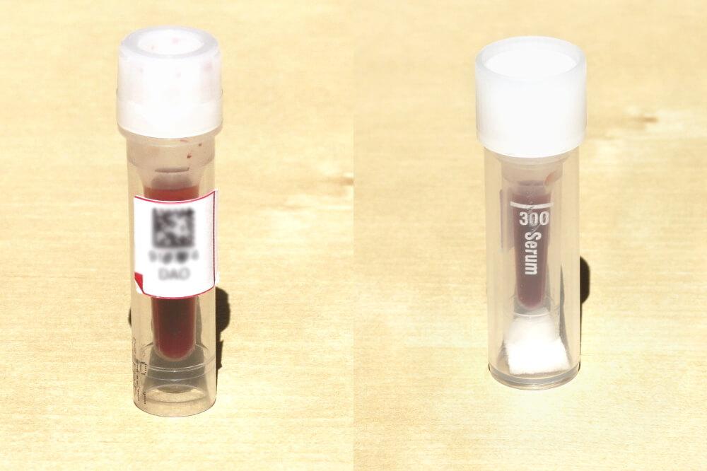 Histaminintoleranz Blutbehälter