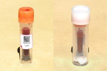 Lebensmittelunverträglichkeit Test Blutbehälter